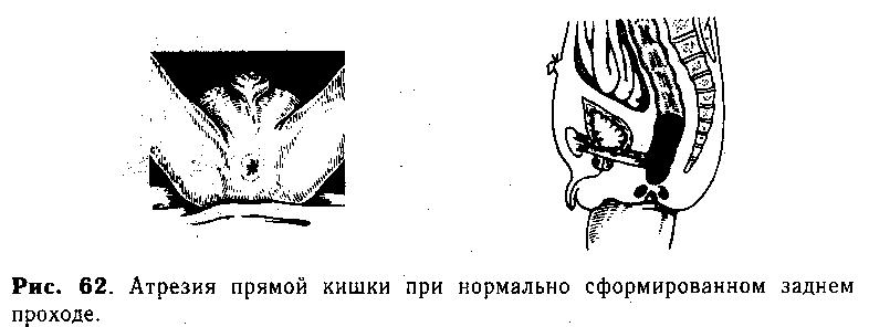 u-guppi-bugorok-okolo-analnogo-otverstiya